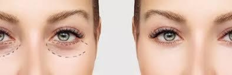 Under eye treatment Before After
